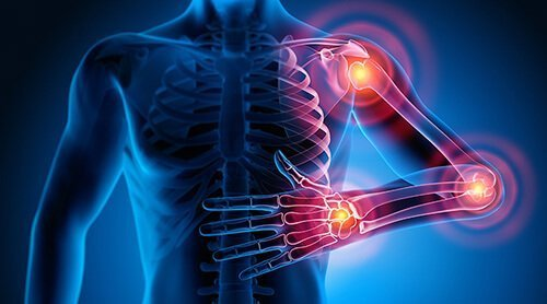 3D x-ray of three pain points in the shoulder, elbow, and wrist. They have been struggling with managing chronic pain. Badass Therapy offers pain management counseling in denver, co, chronic illness counseling, chronic pain counseling, and other services! Get in touch with a chronic illness therapist today!